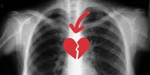 corazón partío